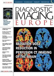 radiation dose reduction in perfusion ct imaging of the brain